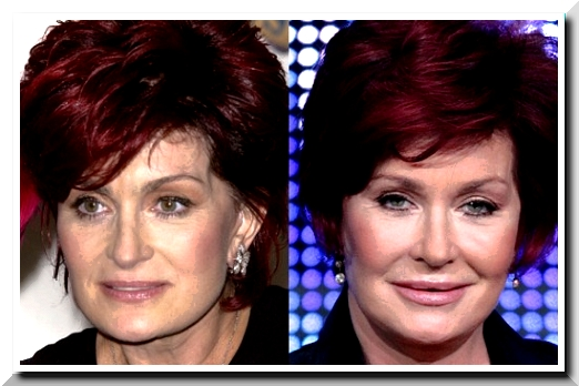 Sharon Osbourne,  It's Embarrassing to Have Many Times Plastic Surgery