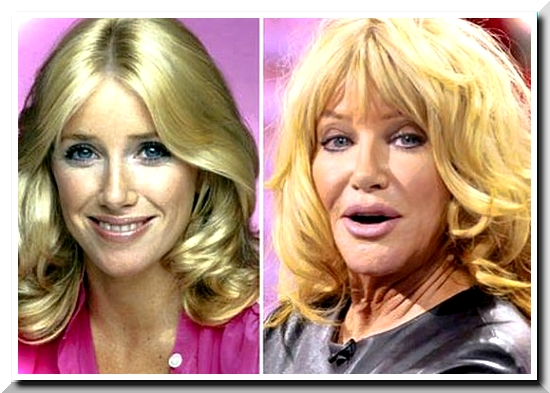 Suzanne Somer Never Admits It Even It's Obvious